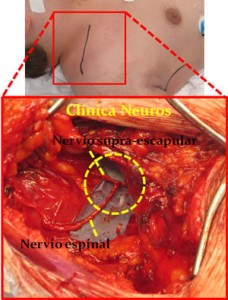 Anastomosis-espinal-supraescapular-2