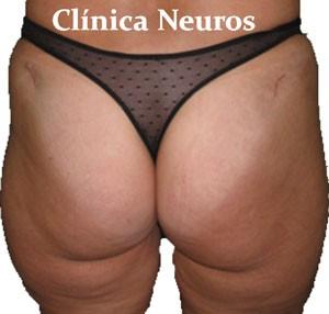 Artrodesis-sacro-iliaca-cicatriz