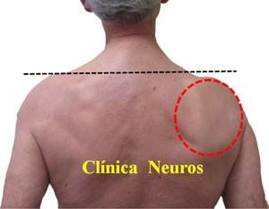 Atrapamiento-nervio-supraescapular-atrofia-muscular