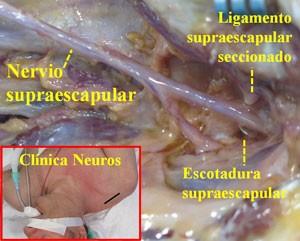 Atrapamiento-nervio-supraescapular-tto-quirurgico