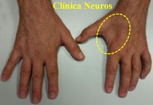 Atrofia-musculatura-mano-en-atrapamiento-nervio-cubital-en-canal-de-Guyon