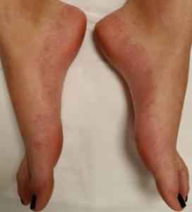 Hiperhidrosis-plantar-pies