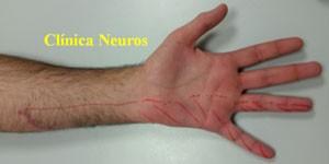 Lesion-cubital-en-codo-por-laceracion