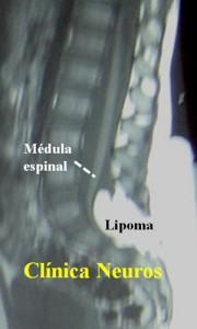 Lipoma-lumbosacro-RM-lumbar