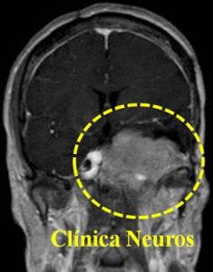 Meningioma-base-de-craneo-coronal