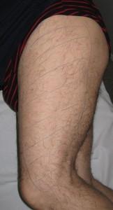Meralgia-parestesica-zona-de-dolor-anestesia