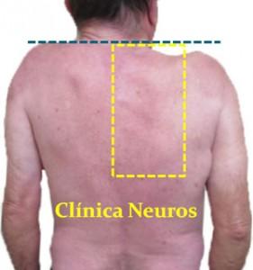 Nervio-espinal-lesion