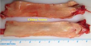Placas-ateroma-carotida-cervical