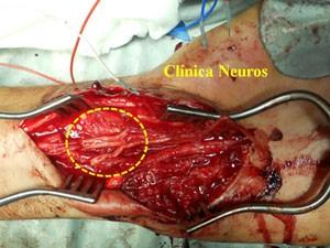 Reparacion-lesion-nervio-mediano-con-injertos