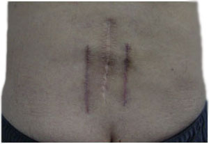 Skin incisions after open-field lumbar postero-lateral arthrodesis. The middle line is the traditional skin incision and on the sides (more reddish as they are more recent) the skin incisions after the intermuscular approach of Wiltse