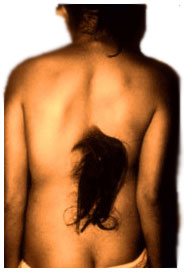 Unormal hår merking diastematomyelia