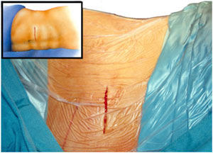 Abdominal wall incision for implantation of the pump Intrathecal Baclofen