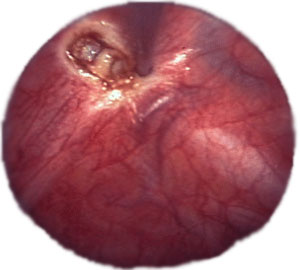 Endoscopic destruction of the sympathetic chain