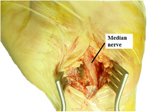 Surgical picture after complete section of the anterior carpal ligament