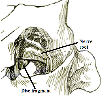 Removal of herniated cervical disc