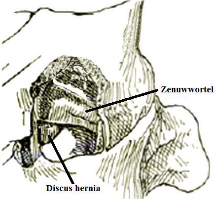 Hernia cervicale disc verwijderen