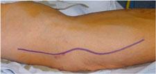 Incisión nervio cubital en codo