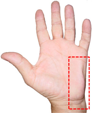 Atrophy of the intrinsic muscles of the hand at the level of the hypothenar