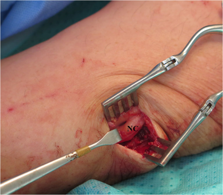Ulnar nerve (NC) exposed at the elbow with minnimally invasive approach