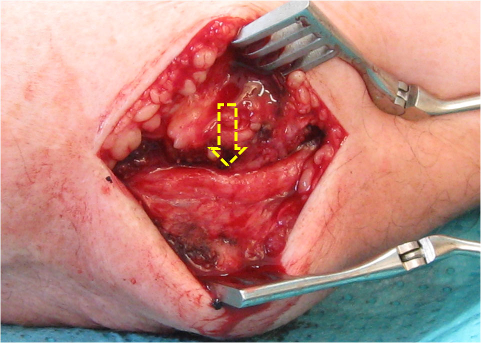 Ulnar nerve exposed at the elbow in open field incision