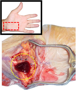 Ulnar nerve compression at Guyon's canal due to a ganglion
