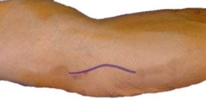 Snitt for dekompresjon av ulnar nerve på albuen