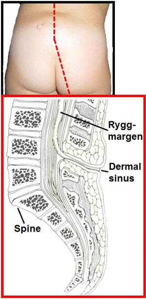 Pit i huden som markerer tilstedeværelsen av en dermal sinus