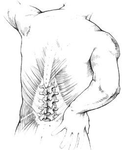 age rugpijn