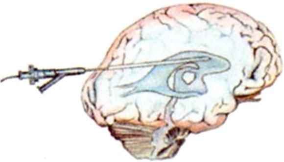 Endoskopisk intraventrikulære kateter implantering i hydrocephalus