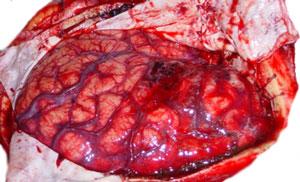 Cerebro edematoso expuesto tras hemicraniectomía descompresiva