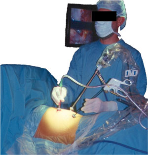 Endoscopic approach to a thoracic herniated disc