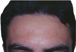 hiperhidrosis_facial