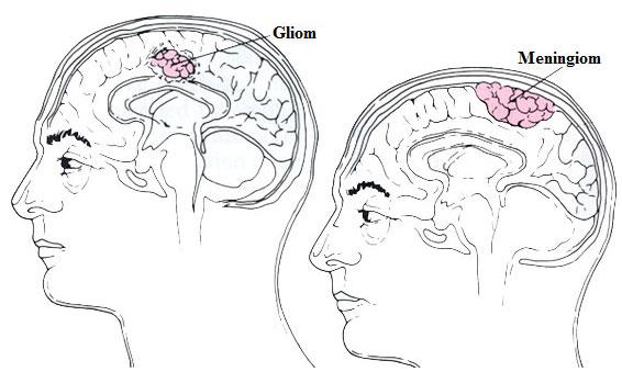 Typer av primära hjärntumörer