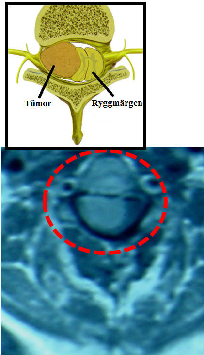 MR avbildning av intradural extramedullär tumör: meningiom