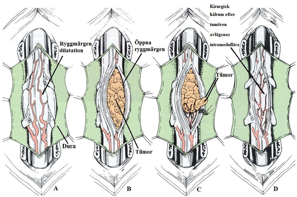 Steg i avlägsnandet av intramedullära tumör