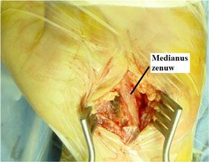 Chirurgische beeld na volledige sectie van de voorste carpale ligament