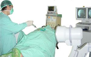 Ozone therapy to treat lumbar disc hernia