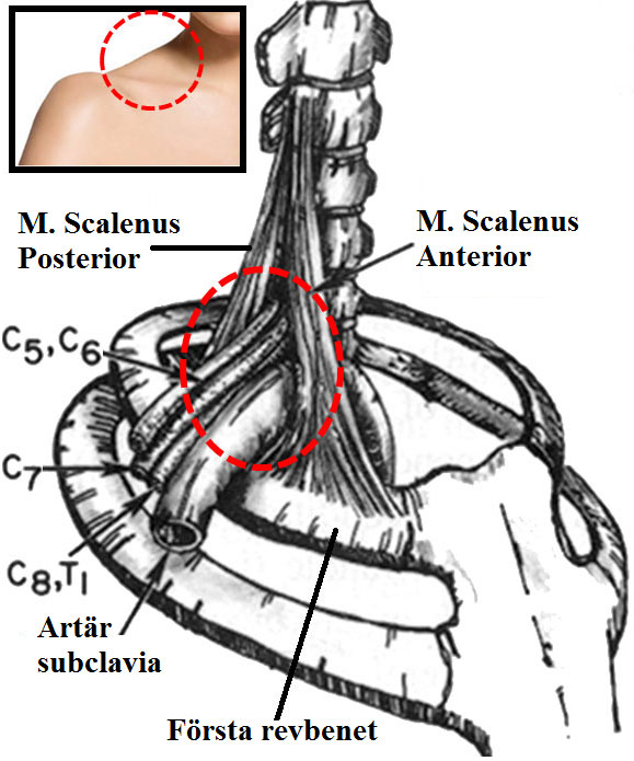 Nerv brottsprovokation syndrom i thoraxapertursyndrom