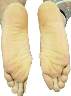 Preoperativ situation perkutan ländryggen Sympathectomy