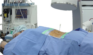 Perkutan radiofrekvent ländryggenSympathectomy