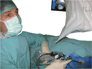 Intraoperative picture with endoscopy system in place