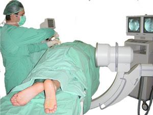 Perkutan radiofrekvent bröstkorg Sympathectomy