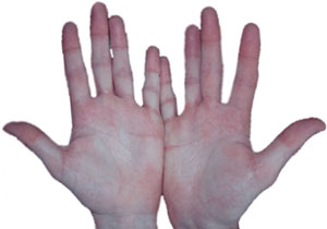 Palmar hyperhidrosis after endoscopic sympathectomy