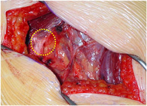 Fibrous tract inducing the piriformis syndrom