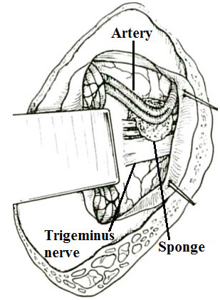 Blood vessel being separated from the trigeminal nerve