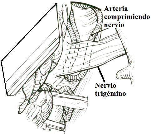 Compresión del trigémino por bucle vascular en neuralgia del trigémino