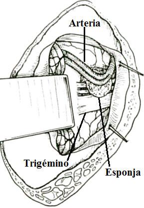 Descompresión vaso arterial en neuralgia del trigémino