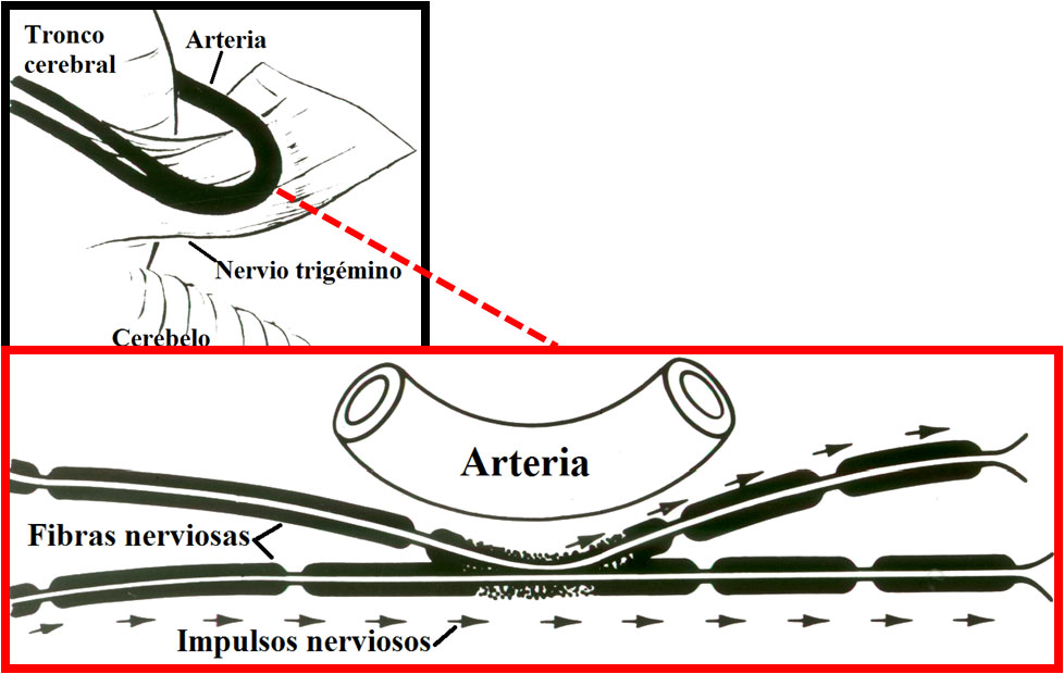 Causa neuralgia del trigémino