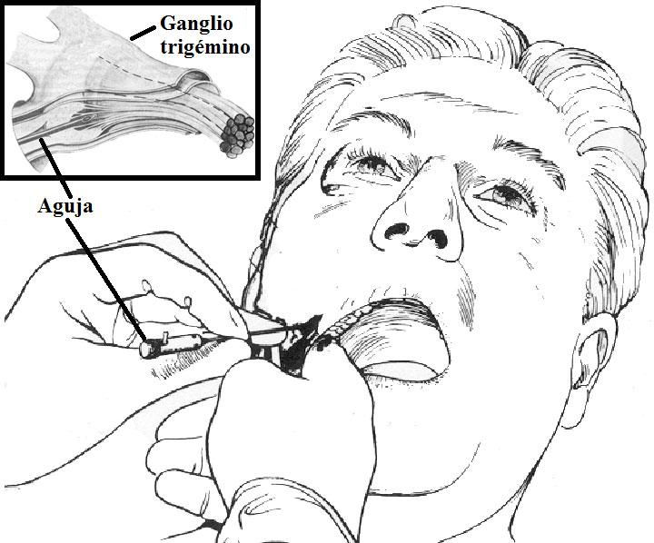 Punción percutánea del nervio trigémino