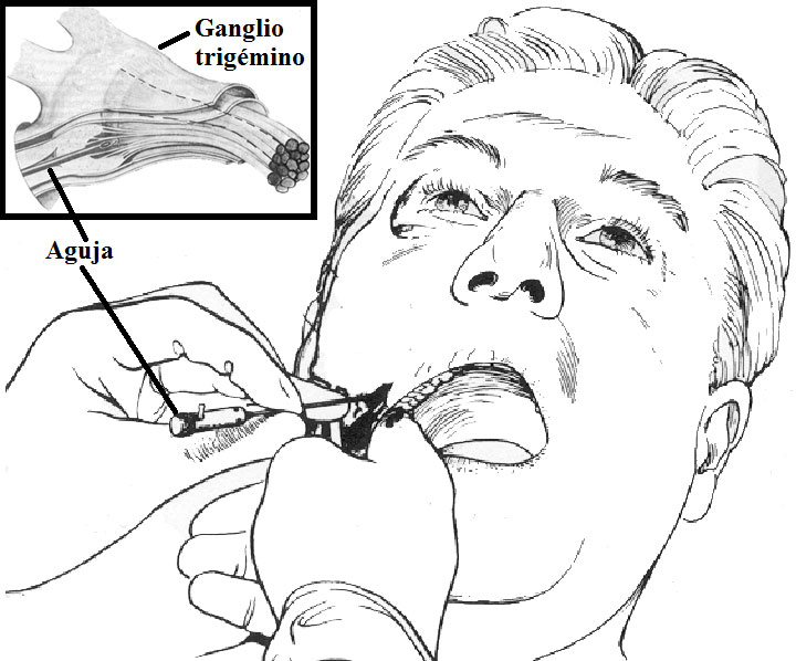 Termocoagulación percutánea del trigémino